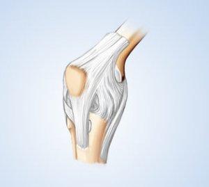 Quanto maior o consumo de leite, menor a progressão da osteoartrite de joelho em mulheres